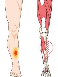 Schematische weergave van scheenbeenvliesontsteking